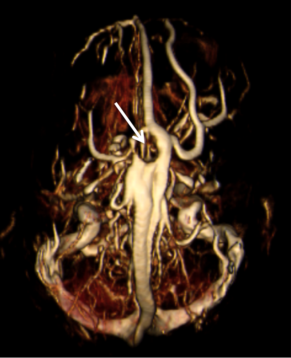 T2-weighted-coronal-MRI-of-the-brain-noting-giant-AG-(arrow).