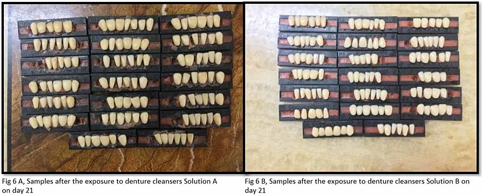 Samples-after-exposure-to-denture-cleanser-on-day-21-(group-A,-solution-A-and-group-B,-solution-B)