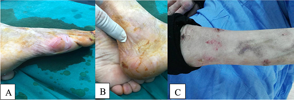 Skin-manifestations-of-epidermolysis-bullosa-three-months-after-open-reduction-and-internal-fixation.