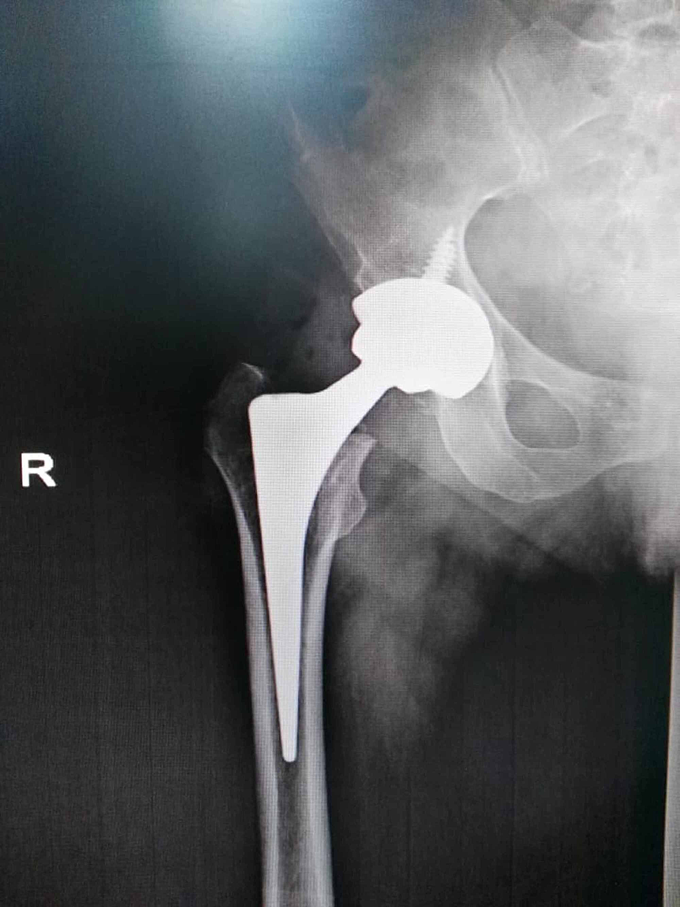 Total-hip-arthroplasty-using-a-cementless-(Zimmer)-prosthesis-and-fixated-via-cannulated-screws.
