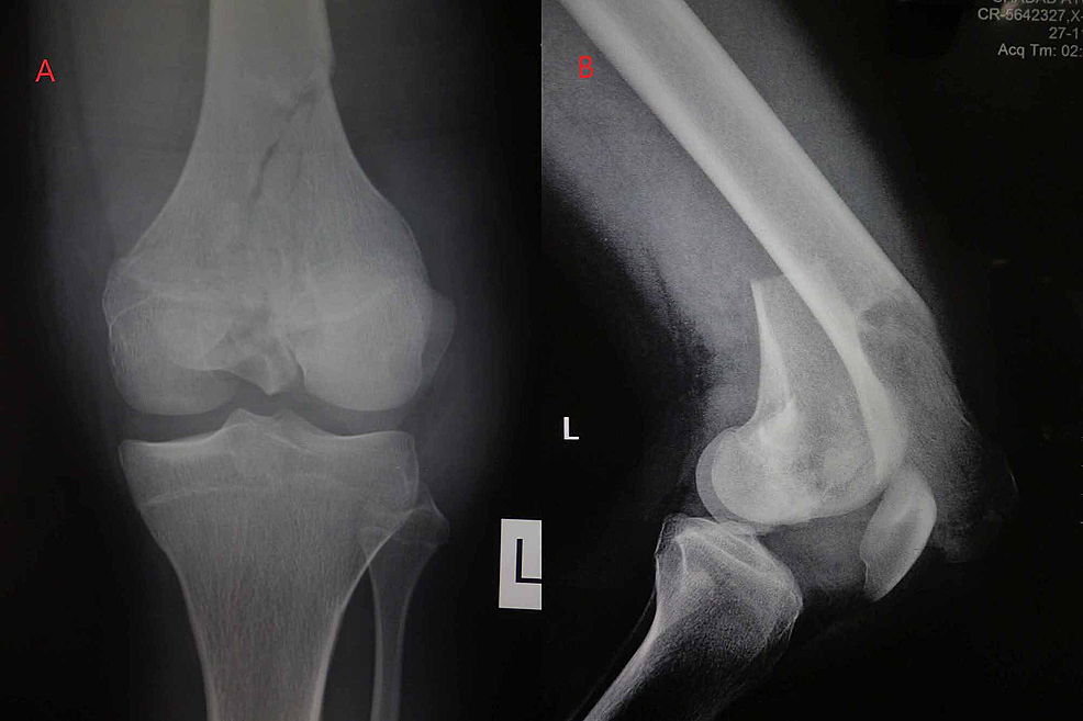 Preoperative-radiographs-of-the-knee