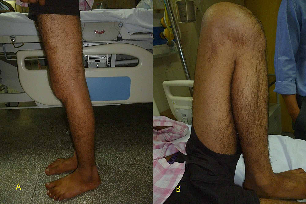 Clinical-images-of-the-knee-at-the-final-follow-up