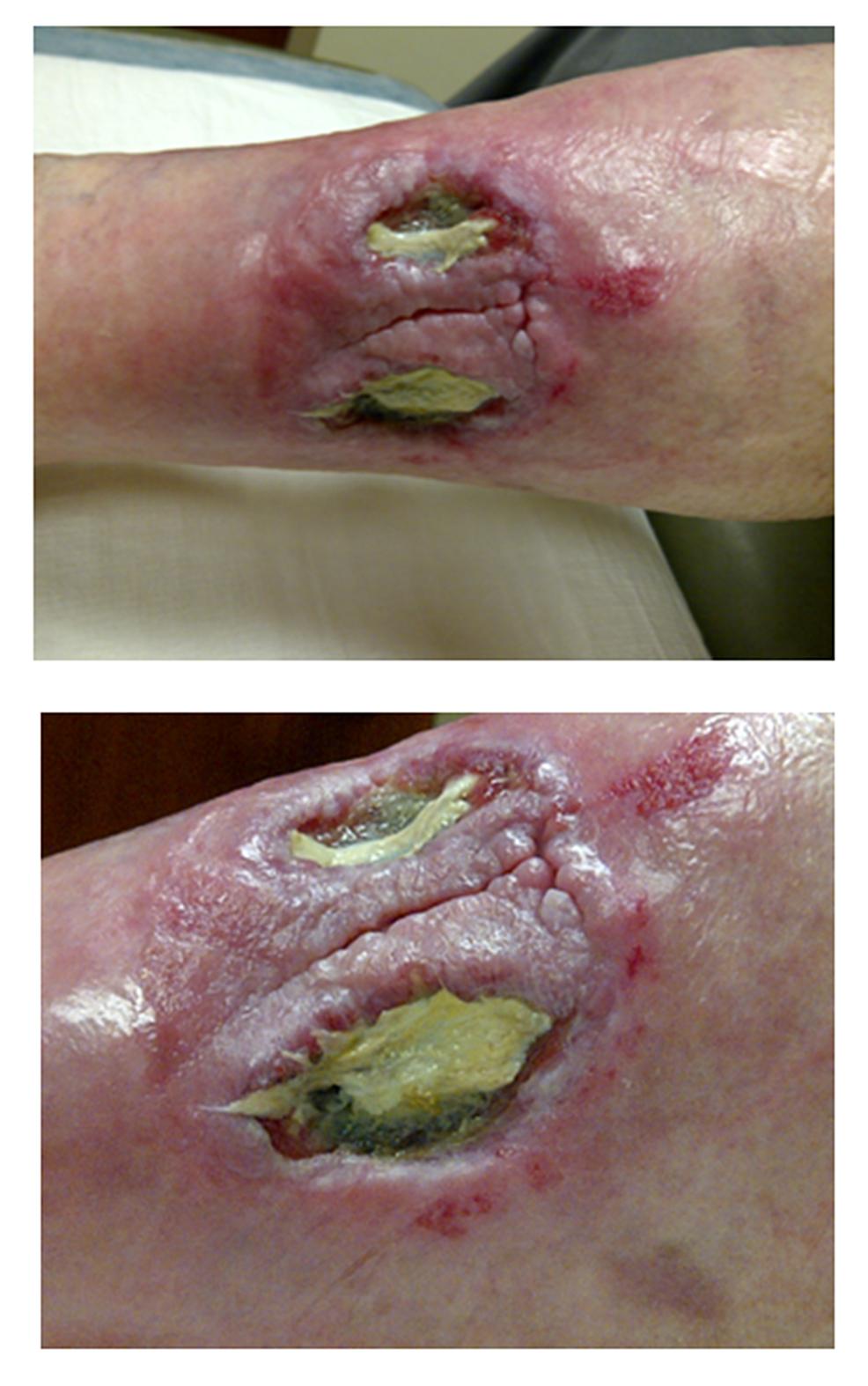 Pre-procedure-Ischemic-Wound