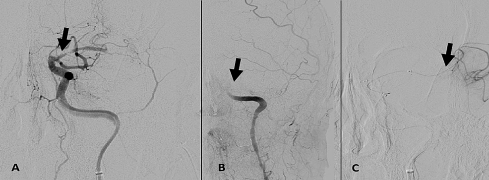 (A)-Delayed-post-angioplasty-DSA-of-the-left-ICA-identified-non-occlusive-thrombus-within-the-M1-trunk-(black-arrow).-(B-and-C)-DSA-after-pharmacologic-intervention-revealed-complete-re-occlusion-at-the-level-of-the-supra-clinoid-ICA,-proximal-to-the-previously-placed-Wingspan-stent-(black-arrow),-with-patency-of-distal-branch-vasculature-(black-arrow).