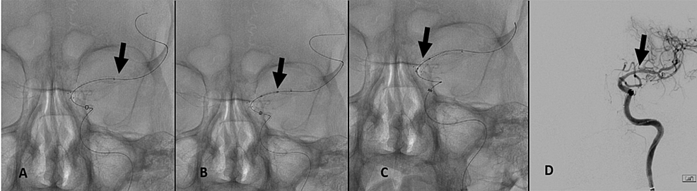(A)-Delivery-and-deployment-of-a-shorter-Xience-Alpine-(2.25-mm-x-8-mm)-stent-through-the-carotid-siphon-into-the-distal-aspect-of-the-MCA-(black-arrow).-(B)-Placement-of-a-second-Xience-Alpine-(2.25-mm-x-8-mm)-stent-into-the-mid-section-of-the-M1-trunk-(black-arrow).-(C)-Implantation-of-a-third-Xience-Alpine-(2.75-mm-x-8-mm)-stent-across-the-proximal-aspect-of-the-M1-trunk-to-cover-the-entire-length-of-the-MCA-(black-arrow).-(D)-DSA-of-the-left-cranio-cervical-circulation-demonstrating-patency-of-the-supra-clinoid-ICA-and-the-M1-trunk,-as-well-as-satisfactory-filling-of-distal-branch-vascularity-(black-arrow).