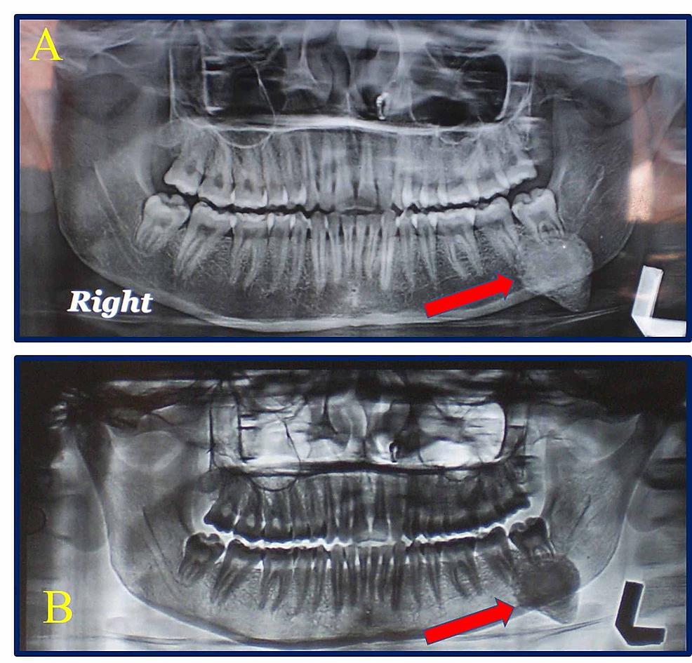 Panoramic-X-ray-(OPG)