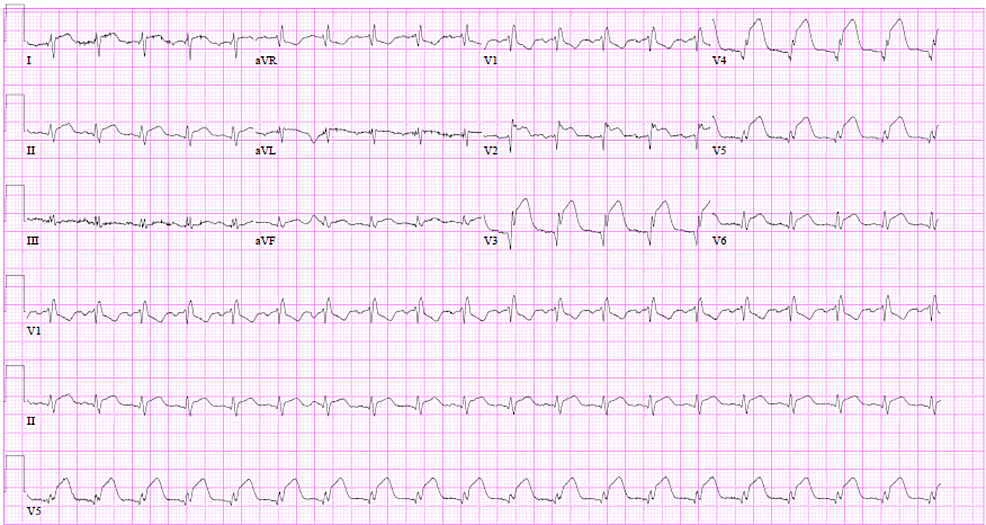 Electrocardiogram-depicting-a-sinus-rhythm,-PR-interval-of-176-ms,-right-bundle-branch-block,-and-ST-elevations-in-the-anterior-and-lateral-leads