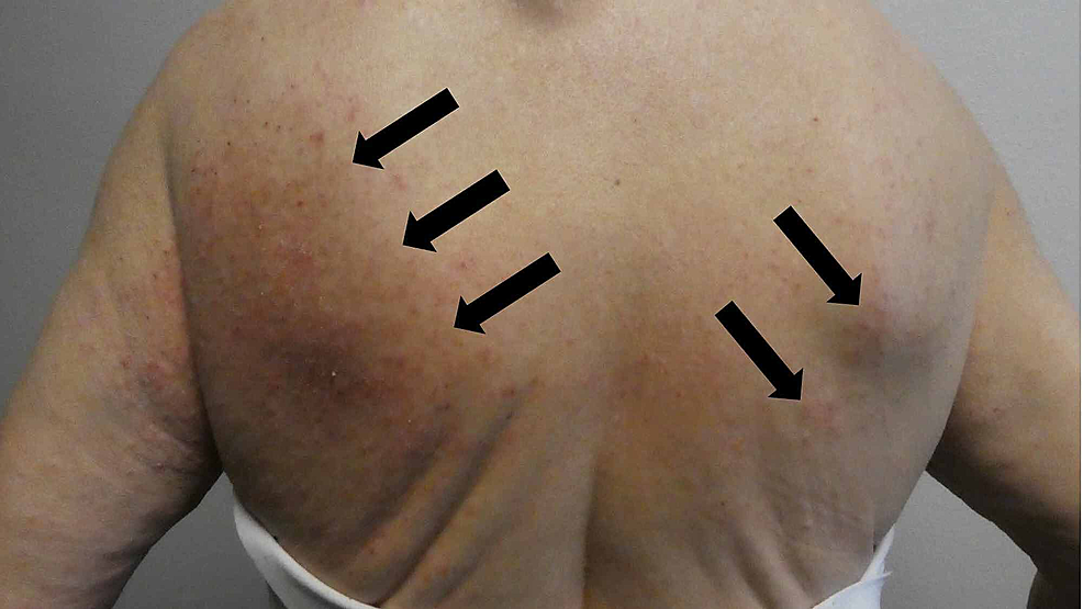 Mite-associated-lesions-on-the-woman's-back-mimicked-dermatitis