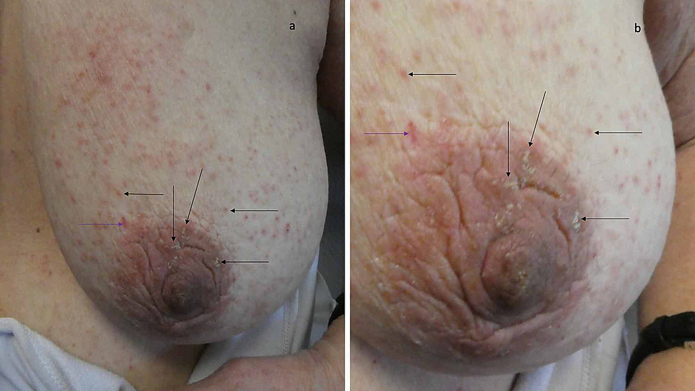 Scabies-lesions-on-the-woman's-left-areola-and-breast