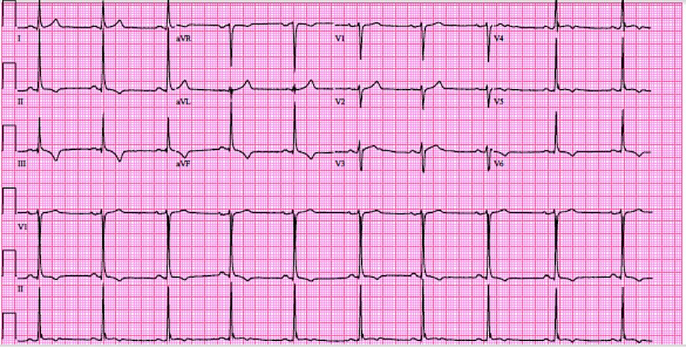EKG-on-admission-showing-T-wave-inversions-in-leads-II,-III,-AVF,-V4-V6.