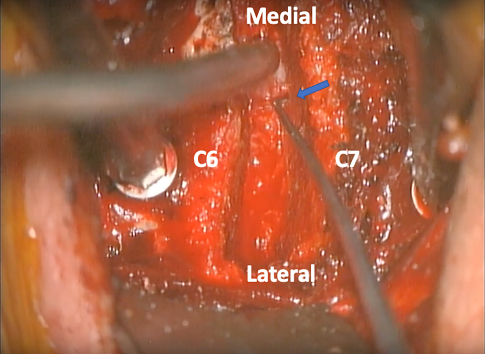 Operative-view-of-the-C6-7-disc-space-and-left-foramen