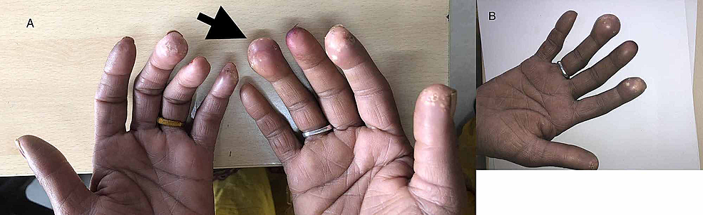 (A,-B)-Showing-grouped-white-to-yellowish-papules-on-the-finger-pads-(black-arrow)
