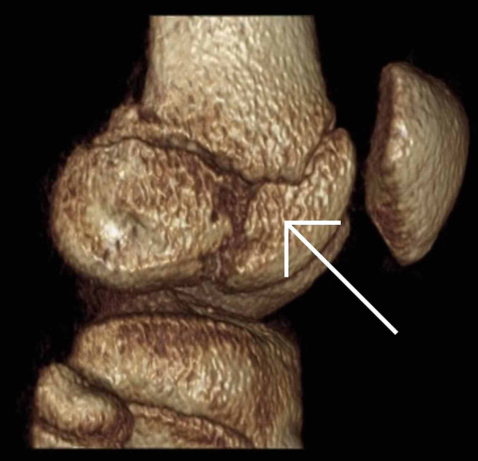 Sagittal-view-of-a-computed-tomography-reconstruction-post-injury