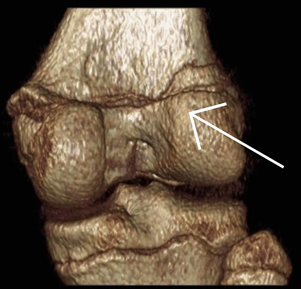 Coronal-view-of-a-computed-tomography-reconstruction-post-injury