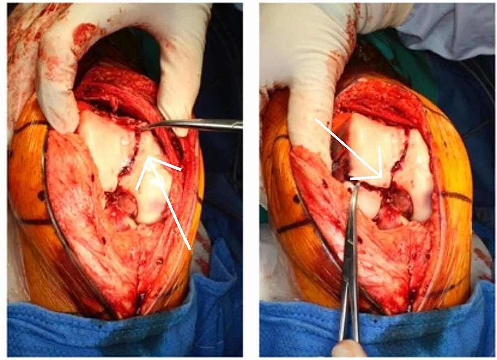 Intraoperative-image-of-right-knee