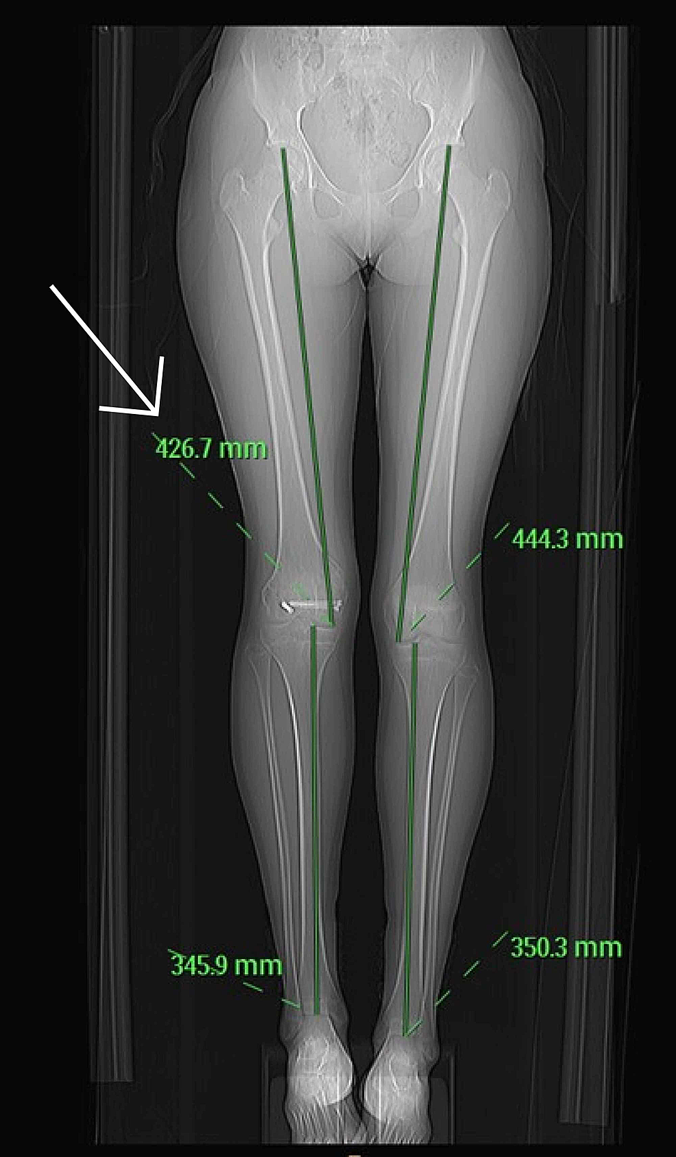 Computed-tomography-scannogram-performed-which-demonstrated-a-limb-length-discrepancy
