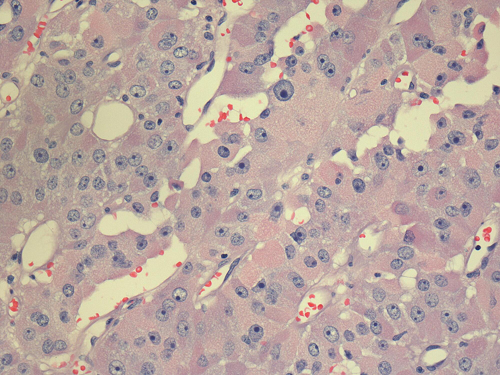 Pathology-slide-of-the-recurrent-tumor.