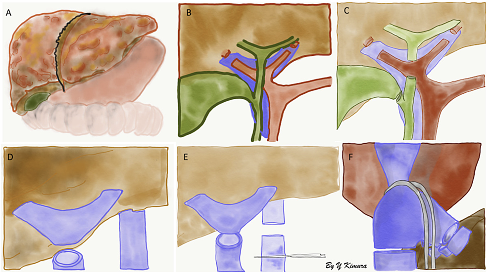 A)-Deceased-liver-from-recipient,-B)-division-of-the-right-and-left-hepatic-arteries,-C)-common-hepatic-and-cystic-ducts-are-divided,-D)-division-of-portal-vein,-E-&-F)-clamps-are-applied-to-inferior-vena-cava-(IVC)-(below-(E)-and-above-(F)-the-liver)-and-hepatic-veins-and-IVC-are-divided.