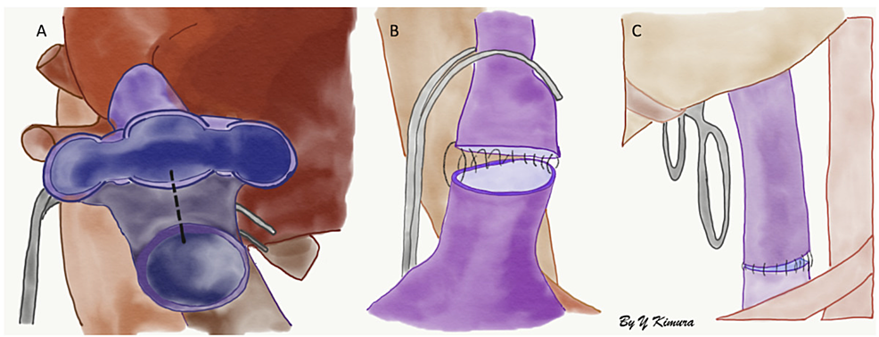A)-Creation-of-a-common-vessel-between-the-recipient's-three-hepatic-veins-and-proximal-inferior-vena-cava-(IVC),-B)-suprahepatic-end-to-end-anastomosis-between-the-recipient-common-vessel-and-donor's-IVC.-C)-Infrahepatic-end-to-end-anastomosis-between-the-recipient-IVC-and-donor's-IVC.