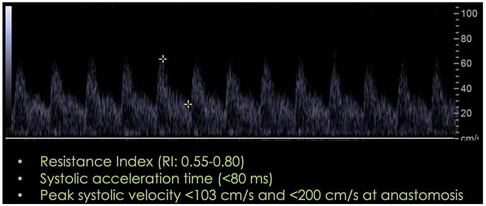 Expected-post-surgical-spectral-waveform-in-the-hepatic-artery.