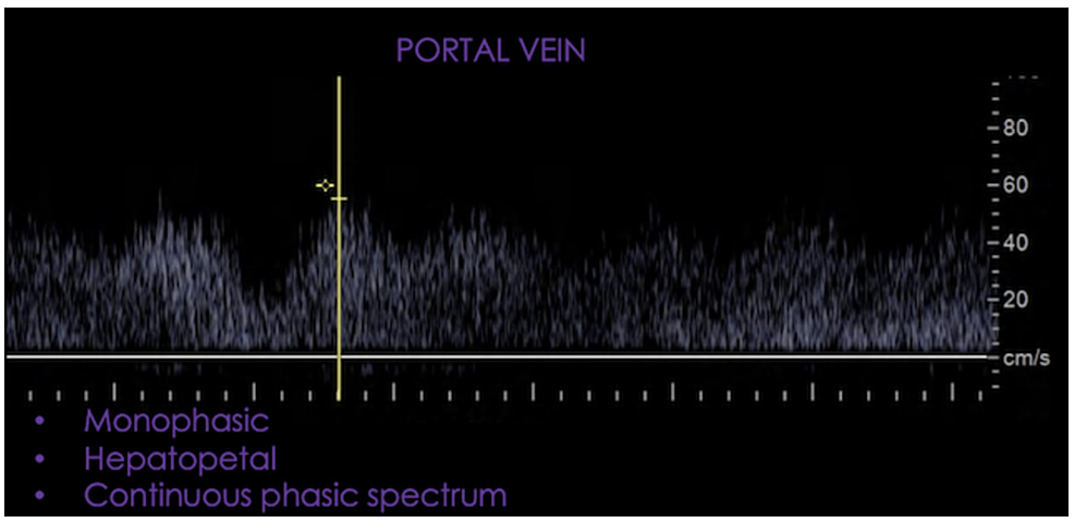 Monophasic,-hepatopetal-and-continuous-spectral-waveform.