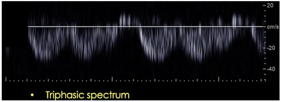 Triphasic-spectral-waveform-in-a-post-transplant-patient.