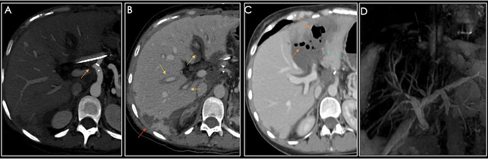 A-24-year-old-male-with-a-history-of-orthotopic-liver-transplant-due-to-cryptogenic-cirrhosis,-presenting-with-abnormal-liver-function-tests.-A)-Maximum-intensity-projection-showing-an-abrupt-amputation-at-the-origin-of-the-hepatic-artery-(orange-arrow).-B)-Periportal-edema-(yellow-arrows)-and-a-wedge-shaped-zone-of-peripheral-hypoperfusion-consistent-with-an-infarction-(red-arrow),-no-hepatic-arteries-are-visualized.-C)-Multiphasic-CT-showing-extensive-biliary-necrosis-with-cavitation-(orange-arrows),-suggestive-of-infection-and-liquefaction.-D)-MR-cholangiography-showing-multiple-sites-of-stenosis-and-irregular-intrahepatic-biliary-dilation.