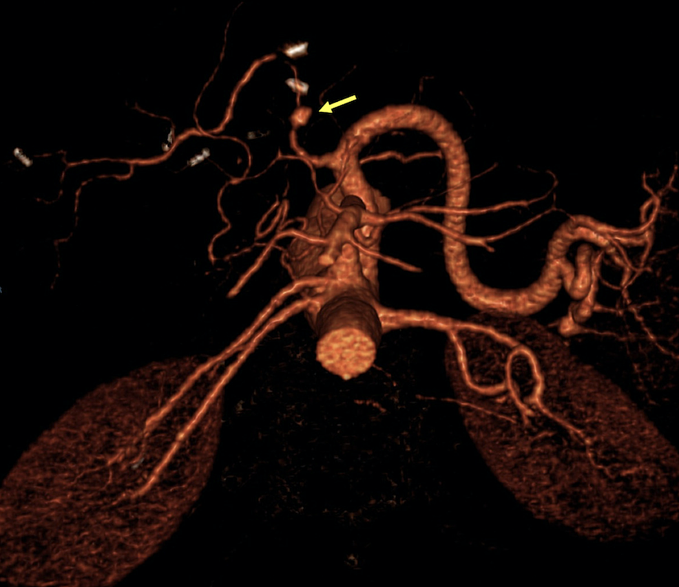 Computed-tomography-angiography-(CTA)-volume-rendered-image-showing-a-saccular-dilation-at-the-pre-anastomotic-portion-of-the-hepatic-artery,-consistent-with-a-pseudoaneurysm-(yellow-arrow).