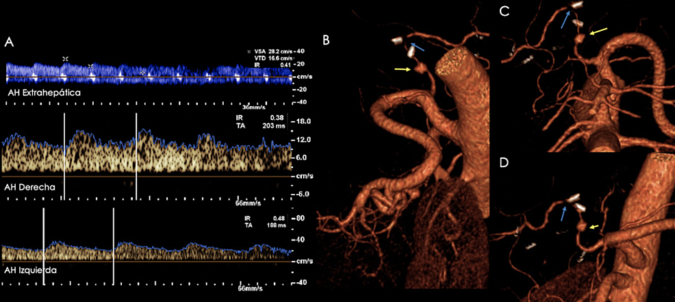 """Patient-with-a-history-of-orthotopic-liver-transplant-presenting-with-abnormal-liver-function-tests.-A)-Hepatic-artery-spectra-(extrahepatic,-right,-left)-showing-diminished-resistance-indices-(0.41,-0.38,-and-0.48,-respectively)-and-a-""""tardus-et-parvus""""-morphology.-Since-a-site-of-stenosis-was-not-identified,-a-CT-angiography-was-performed-due-to-a-high-suspicion-of-a-more-proximal-site-of-stenosis.-B-D)-Volume-rendered-images-showing-a-site-of-stenosis-at-the-hepatic-artery's-anastomosis-(blue-arrows).-A-pseudoaneurysm-proximal-to-the-site-of-anastomosis-was-also-identified-(yellow-arrows)."""