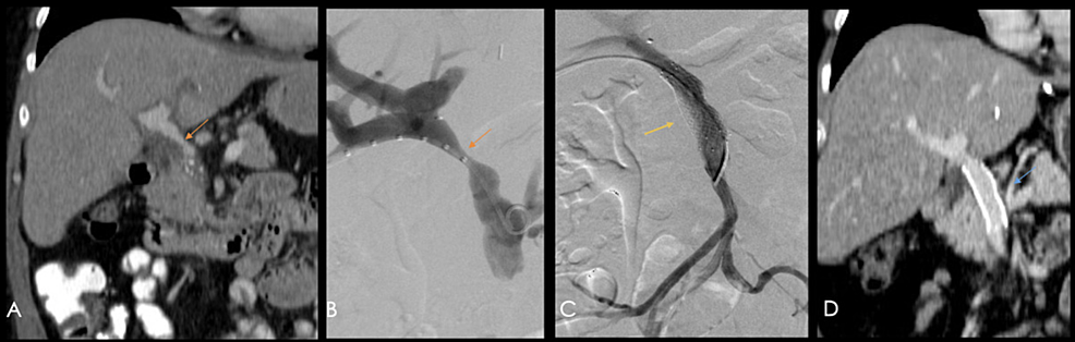 60-year-old-patient-with-a-history-of-orthotopic-liver-transplant-due-to-Barcelona-clinic-liver-cancer-(BCLC)-A-hepatocellular-carcinoma.-A)-Coronal-reconstruction-of-a-contrast-enhanced-CT-showing-a-focal-zone-of-diminished-caliber-in-the-portal-vein-(orange-arrow)-at-the-porta-hepatis-and-at-its-extrahepatic-portion.-B)-Portography-showings-a-focal-decrease-in-caliber-(orange-arrow).-C)-A-portal-stent-(yellow-arrow)-was-placed-during-the-same-procedure.-D)-Coronal-reconstruction-of-a-follow-up-contrast-enhanced-CT-performed-four-years-after-stent-placement,-showing-adequate-permeability-(blue-arrow).