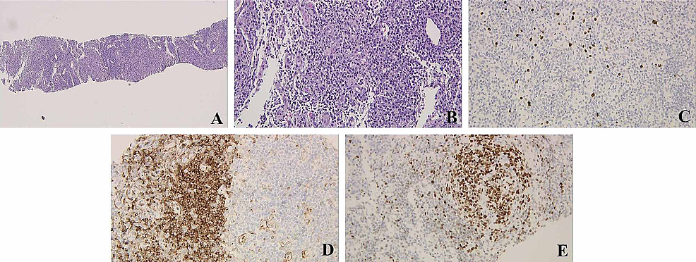 Left-clavicular-LN-needle-core-biopsy.-(A)-LN-tissue-(hematoxylin-and-eosin-staining;-magnification,-×40).-(B)-Mildly-increased-vascularity-in-the-interfollicular-areas,-sheets-of-mature-plasma-cells,-and-lymphoid-follicles-with-germinal-centers-are-present-(magnification,-×200).-(C)-Immunoperoxidase-stain-for-HHV-8-shows-positive-staining-of-interfollicular-cells-(magnification,-×200).-(D)-Bcl-2-stain-negative-(magnification,-×200).-(E)-BCL-6-stains-the-germinal-centers-positively-(magnification,-×200).