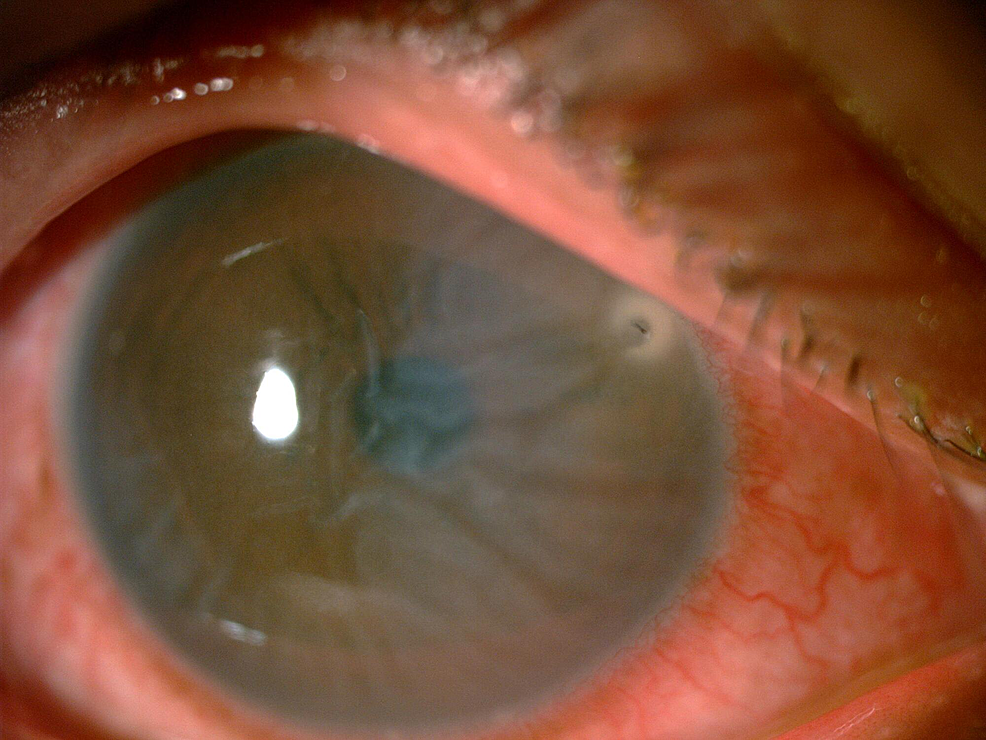 Bee-stinger-at-the-two-o'clock-region,-1-mm-from-the-limbus-with-Descemet-striae-over-the-nasal-half-of-the-cornea.