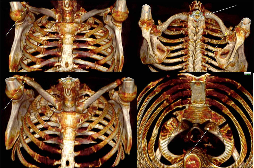 Three-dimensional-computed-tomography-scans.