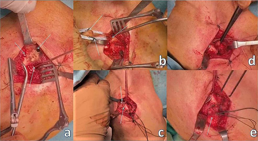 Acromioclavicular-stabilization.