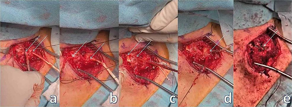 Sternoclavicular-stabilization.
