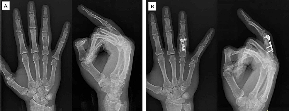 A:-A-17-year-old-patient-with-displaced-proximal-phalangeal-pathological-fracture.-B:-Curettage-of-the-enchondroma-and-filling-the-defect-with-autologous-bone-graft-from-iliac-crest,-and-plate-fixation-(postoperatively-sixth-month,-bone-graft-was-well-incorporated).