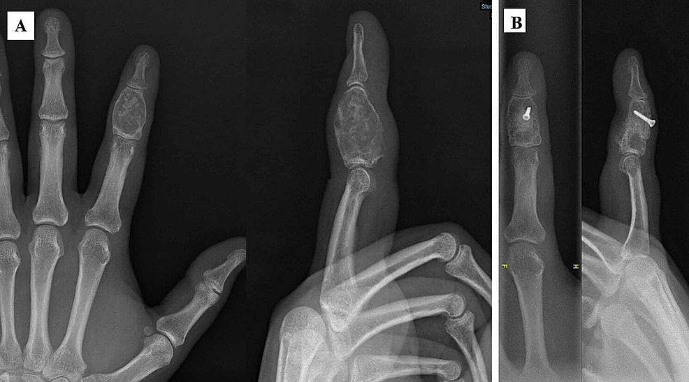 A:-32-year-old-patient-with-giant-enchondroma-at-the-middle-phalanx.-B:-Bone-graft-from-iliac-crest-was-fixed-with-a-screw-and-was-well-incorporated-at-12th-month-postoperatively.