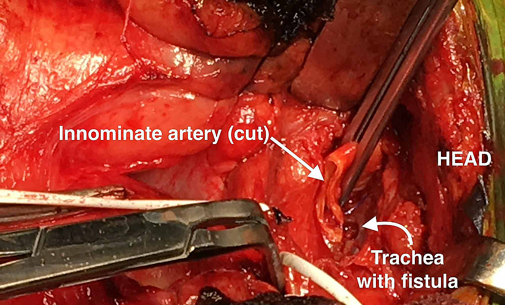 Clamped-innominate-artery-with-tracheal-fistula-exposed