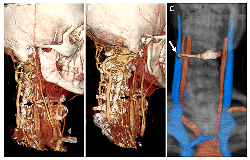 Three-dimensional-reconstruction-of-the-preoperative-vessel-imaging.