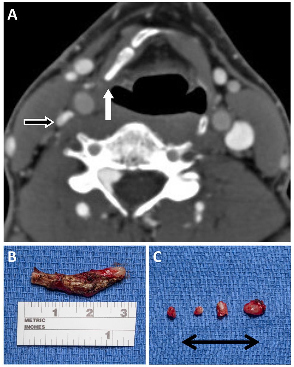 Postoperative-venogram-and-intraoperative-pathology.