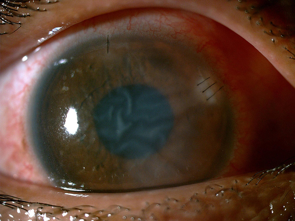 Image-showing-marked-improvement-of-corneal-infiltrates-and-oedema-of-the-right-eye-at-three-days-post-removal-of-the-bee-stinger.