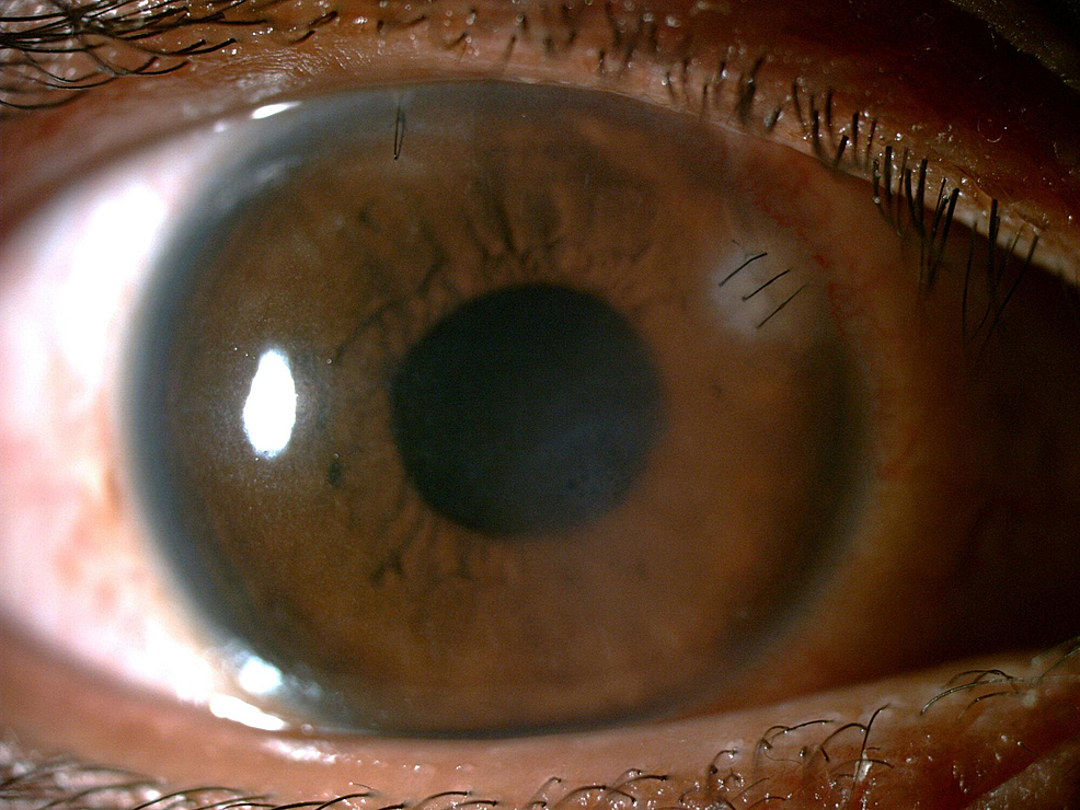 Clear-cornea-with-scar-formation-at-the-embedded-bee-stinger-area-at-the-one-month-follow-up.