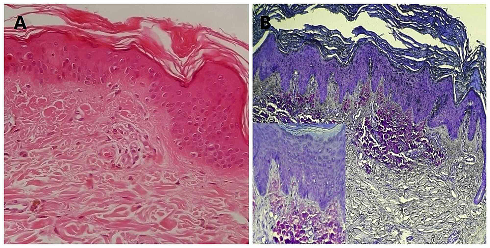 -(A)-Hyaline-bodies-in-hematoxylin-eosin-staining-(200×).-(B)-Crystal-violet-staining-of-amyloid-deposition-in-the-papillary-and-upper-dermis-(200×).-Inset-shows-purplish-red-amyloid-deposits-in-the-papillary-and-upper-reticular-dermis-(crystal-violet,-400×).