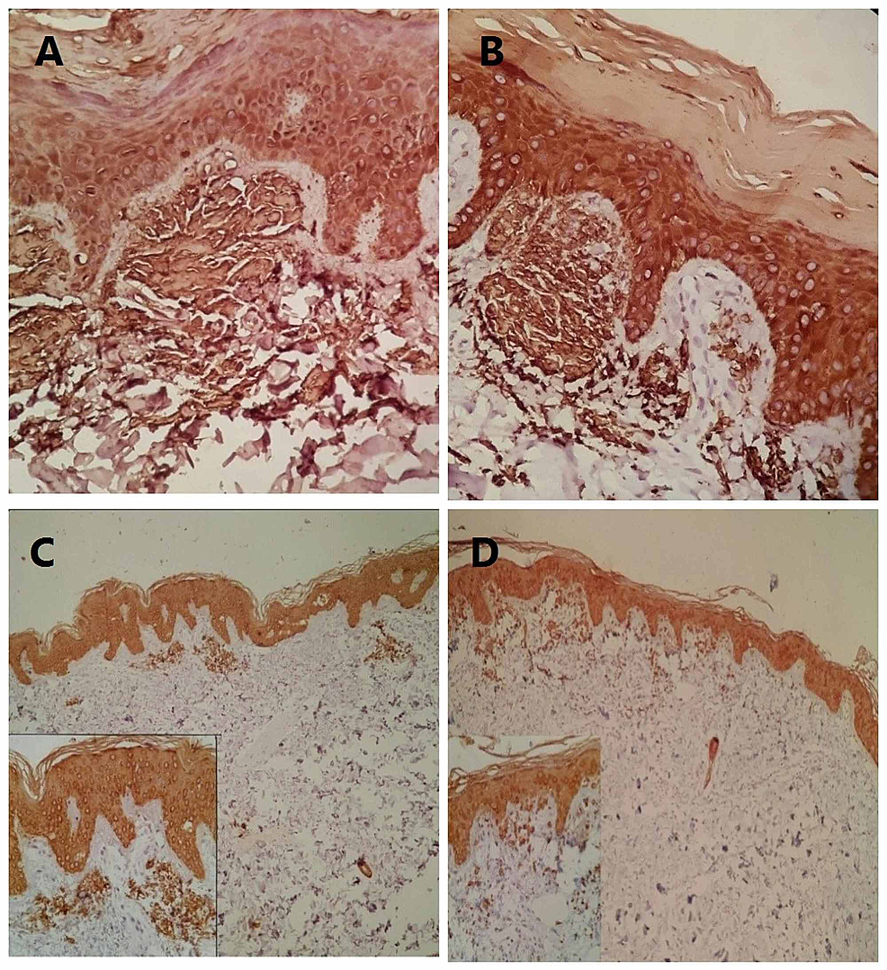 (A)-CK5-staining-of-amyloid-deposition-in-the-papillary-dermis-(200×).-(B)-HMWK-staining-of-bulky-amyloid-deposition-in-the-papillary-dermis-(200×).-(C)-CK5-staining-with-patchy-immunoreactivity-for-amyloid-depositions-in-the-upper-dermis-(100×).-Inset-shows-discrete-amyloid-deposit-in-the-upper-dermis-(200×).-(D)-HMWK-staining-with-focal-immunoreactivity-for-amyloid-depositions-in-the-papillary-and-upper-dermis-(100).-Inset-shows-amyloid-deposit-in-the-papillary-dermis-(200×).
