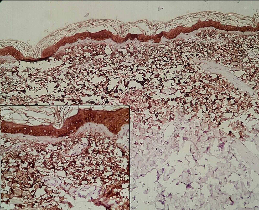 CK5-staining-with-diffuse-immunoreactivity-for-amyloid-deposition-in-the-upper-dermis-in-a-granular,-fibrillary-pattern-(on-collagen-fibers)-(100×).-Inset-shows-amyloid-deposit-in-the-upper-dermis-(200×).