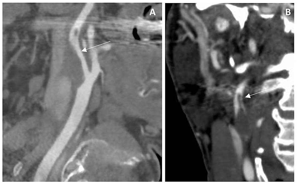 Computerized-tomography-angiography-initial-assessment-of-case-1