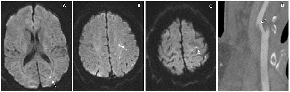 Imaging-studies-performed-during-hospital-stay-of-case-2