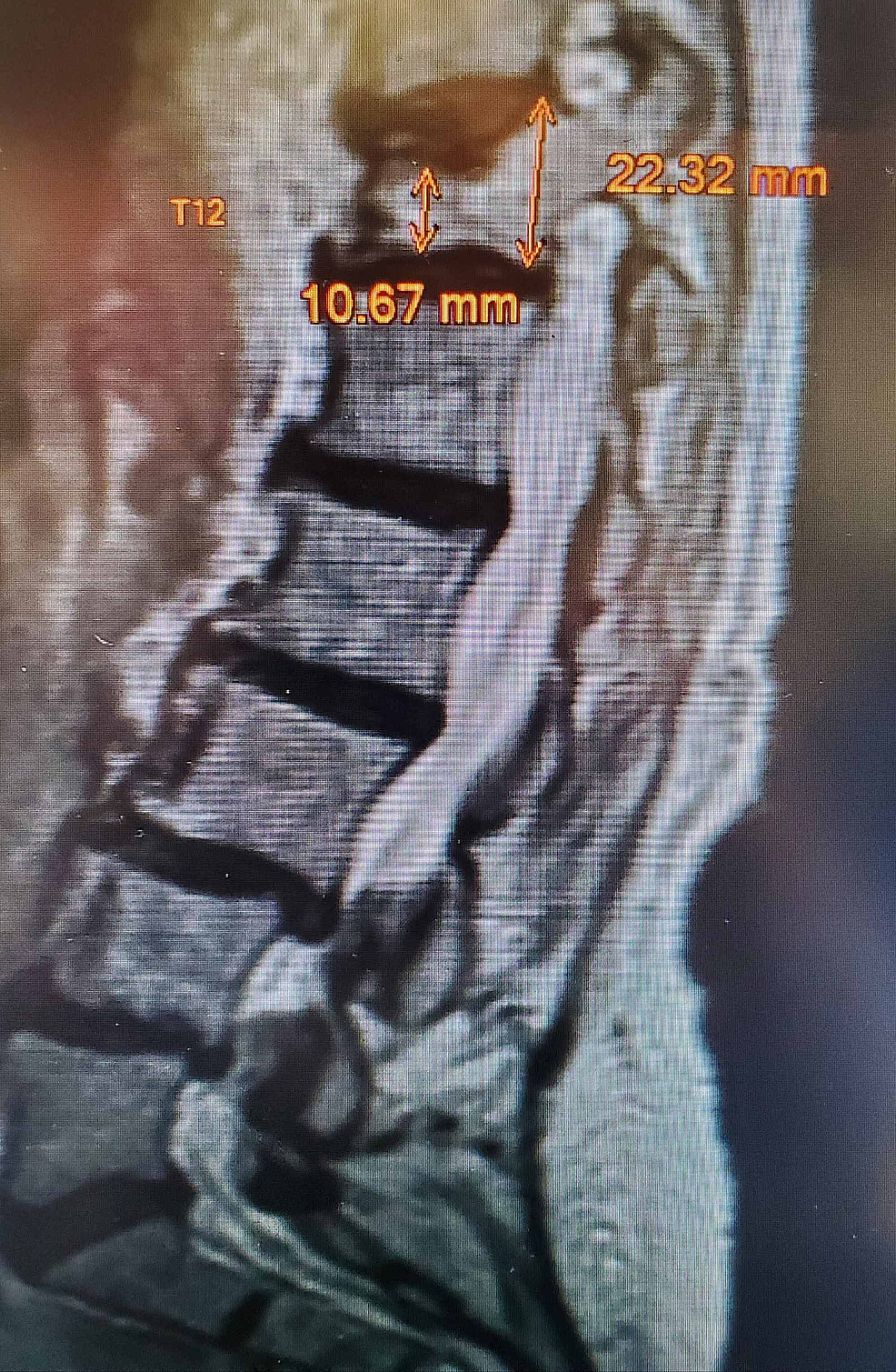 MRI-obtained-after-persistent-pain-despite-bracing