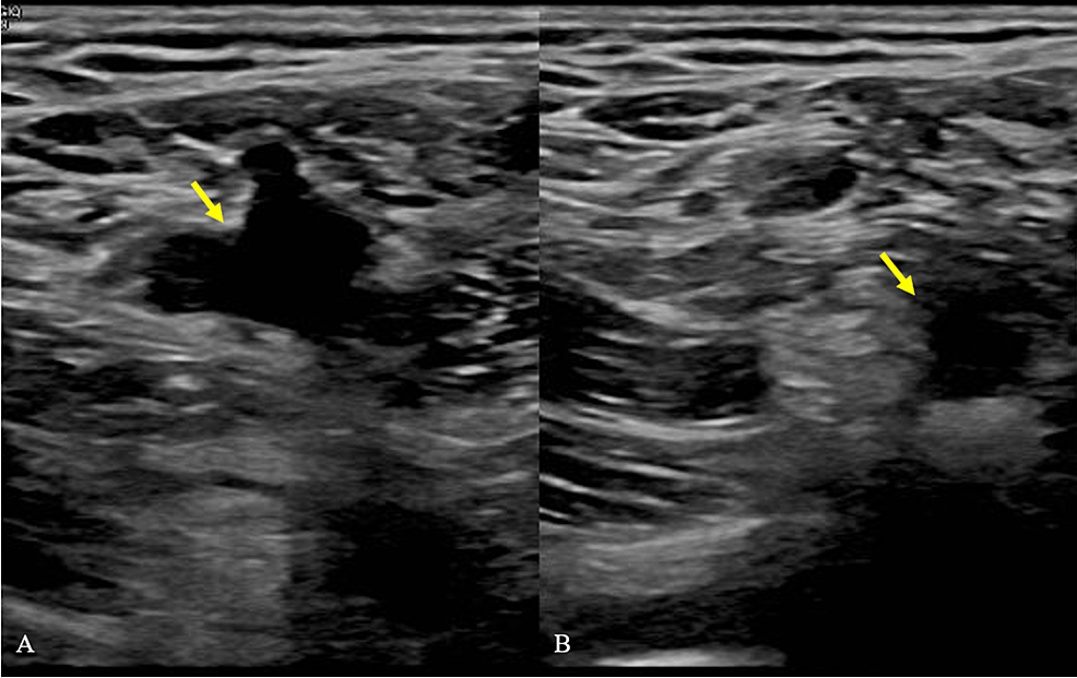 Duplex-venous-ultrasound-of-the-left-lower-femoral-vein