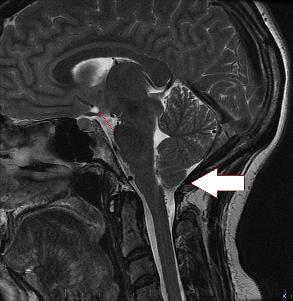 Sagittal-T2-brain-MRI-demonstrating-low-lying-cerebellar-tonsils-with-a-decrease-in-the-mamillo-pontine-distance-and-draping-of-the-optic-chiasm-over-the-dorsum-sellae